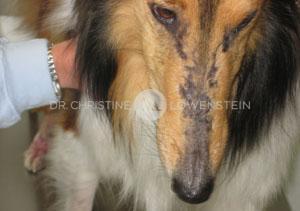 Dermatomyositis im Gesicht